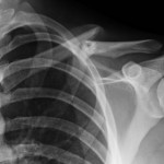 clavicle fracture