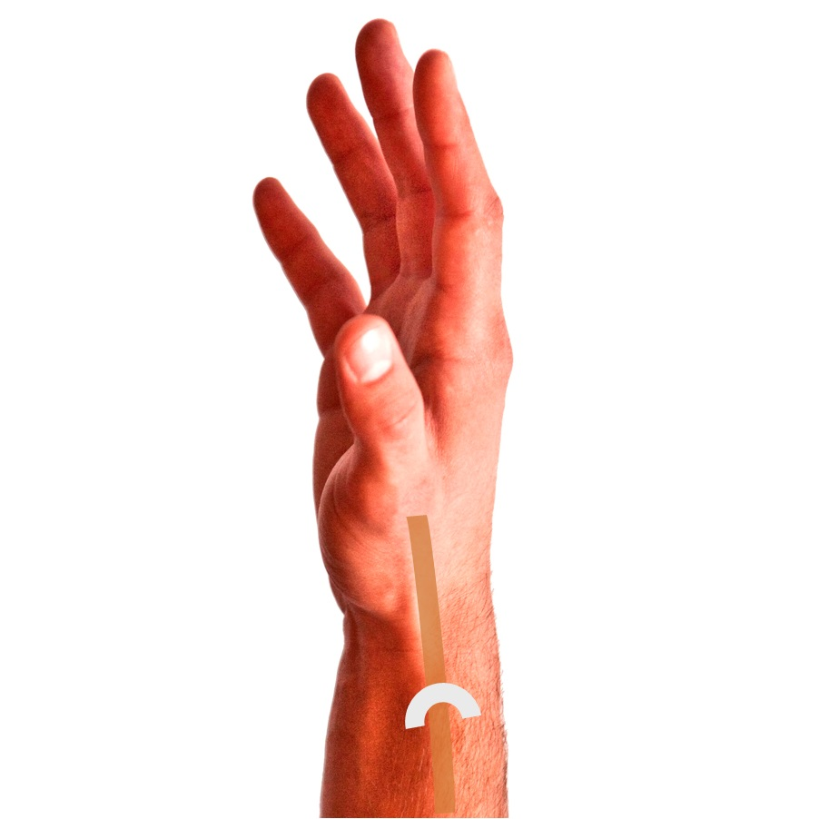 Tendinitis Of The Wrist My Patients Guide To Upper Extremity