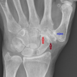 Arrow denote three different joints affecting three different bones at the base of the thumb