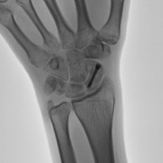 scaphoid fracture screw