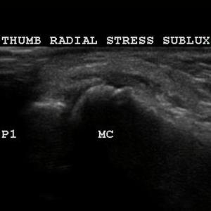 thumb MCL tear with stress