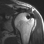 mri following cuff repair
