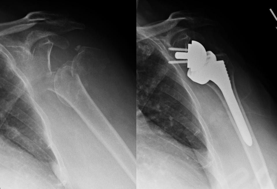 proximal humerus fracture reverse arthroplasty